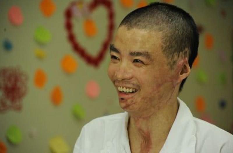 他是见义勇为的英雄,大火中救了44人性命,被烧伤后娶女神为妻