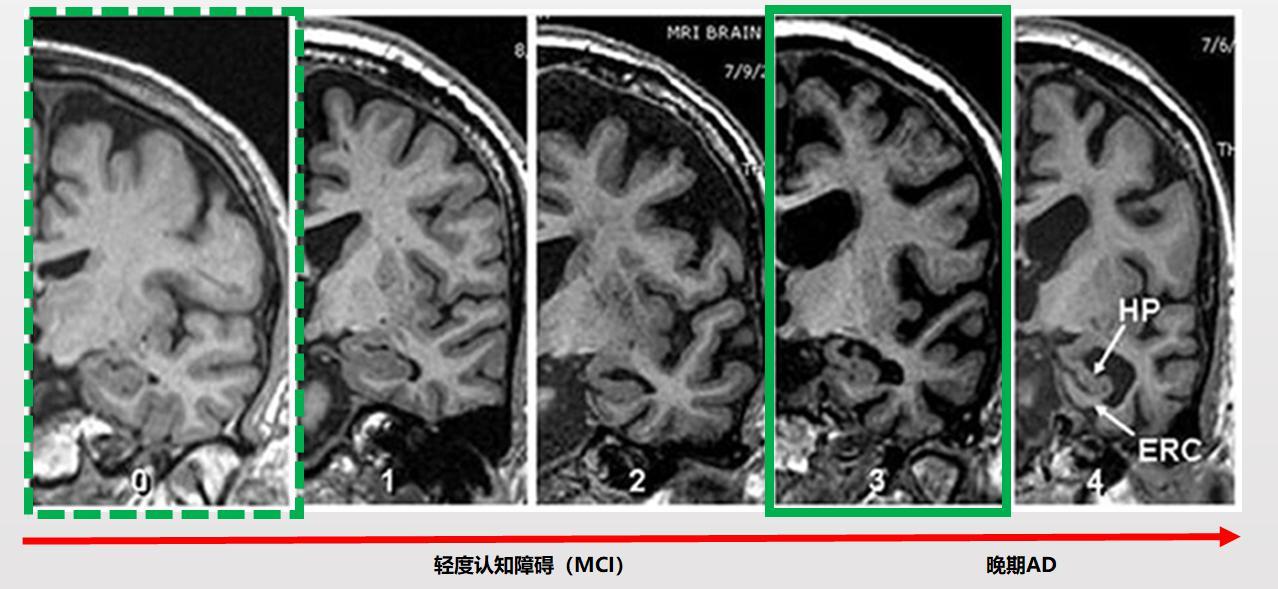 脑医生AI影像平台再发力 精准诊断技术造福群众插图