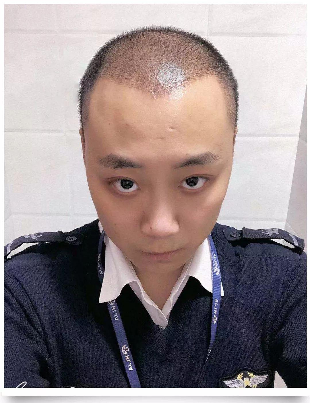 年纪轻轻就脱发 秃顶,原因究竟有哪些 80后男子大胆尝试植发,结果 大跌眼镜