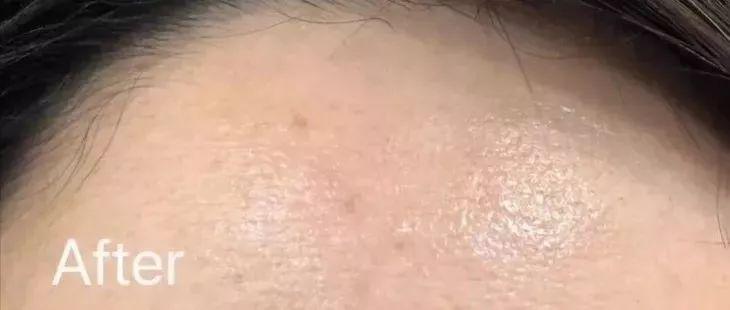 抗老、保湿一瓶面霜就搞定,仅需28天,唤醒18岁的肌肤!