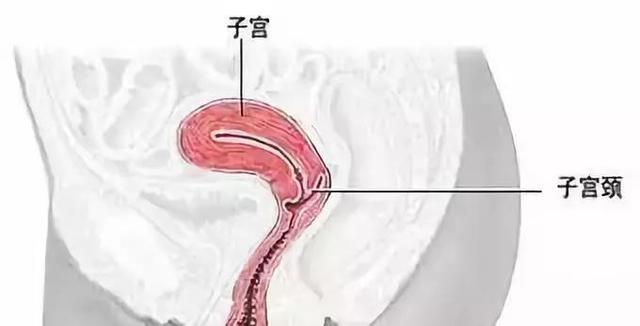 如何治疗宫颈炎 急性慢性子宫颈炎治疗手段差距大