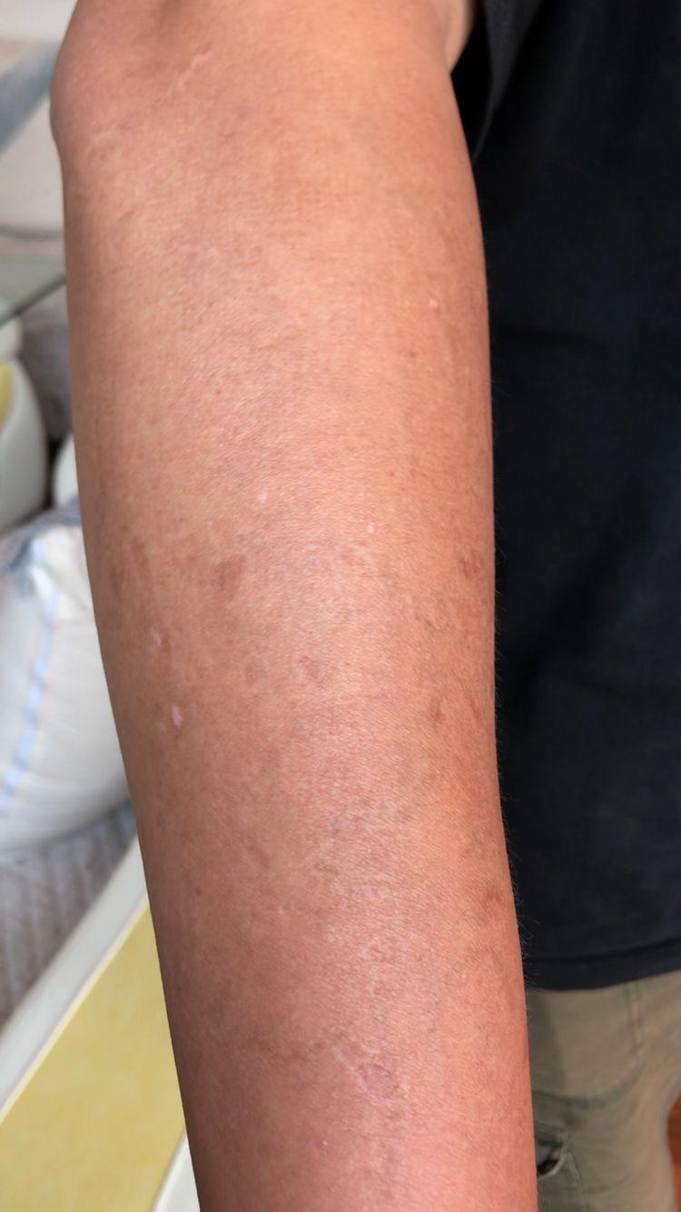 激光洗纹身前后对比图-河南整形美容医院