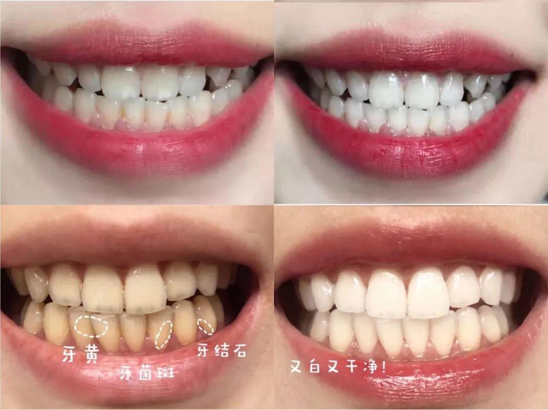 牙龈肿痛还流脓,是怎么回事?