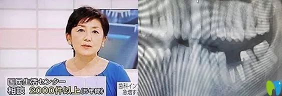 日本为什么停止种植牙?想知道日本禁止种植牙真相戳这里