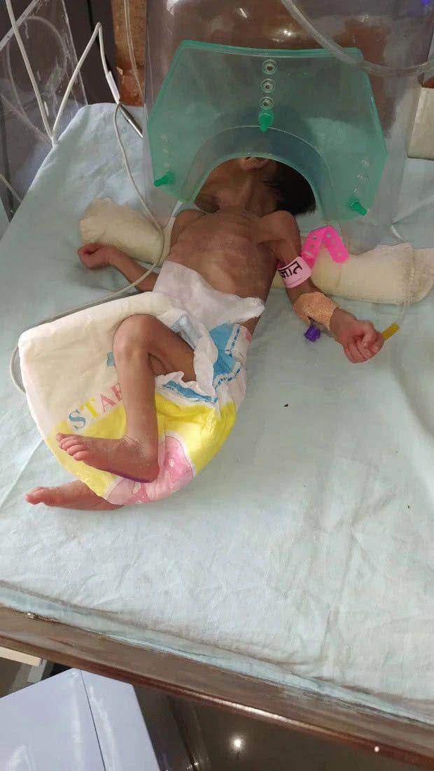 """""""寶堅強""""!出生僅三天印度女寶被埋地下,大聲哭泣實現自救"""