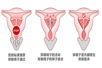 放环是什么原理避孕的图片_节环避孕是什么
