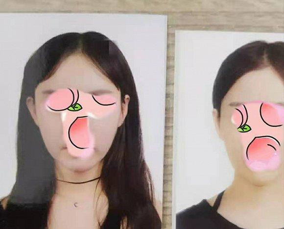 中国女孩韩国整形失败,互联网医美平台要背负多少责任?