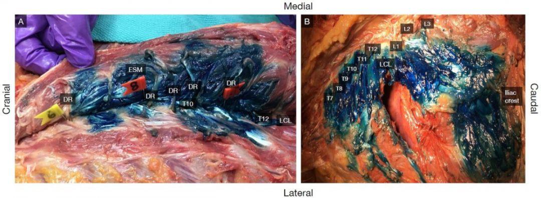 女死刑犯尸体解剖_图19:在ct扫描和尸体解剖中,染料在竖脊肌深面头,尾扩散的情况