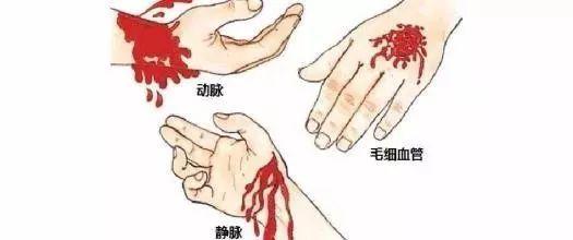 压住伤口什么原理_包扎伤口图片