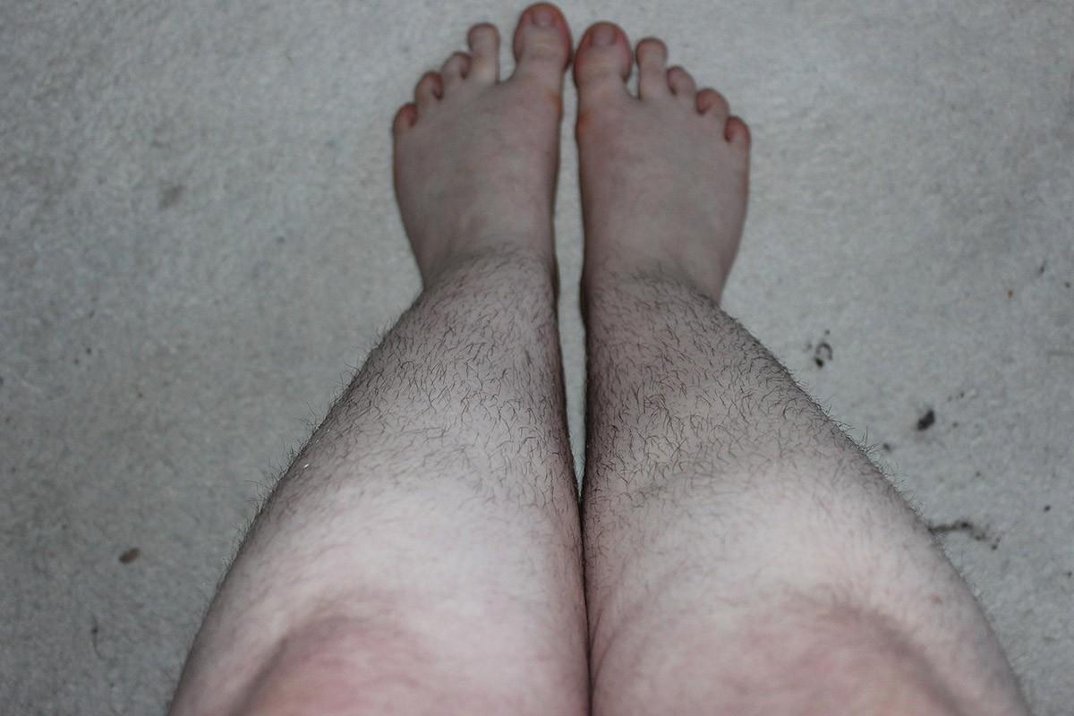 大腿肌肉萎缩早期图片