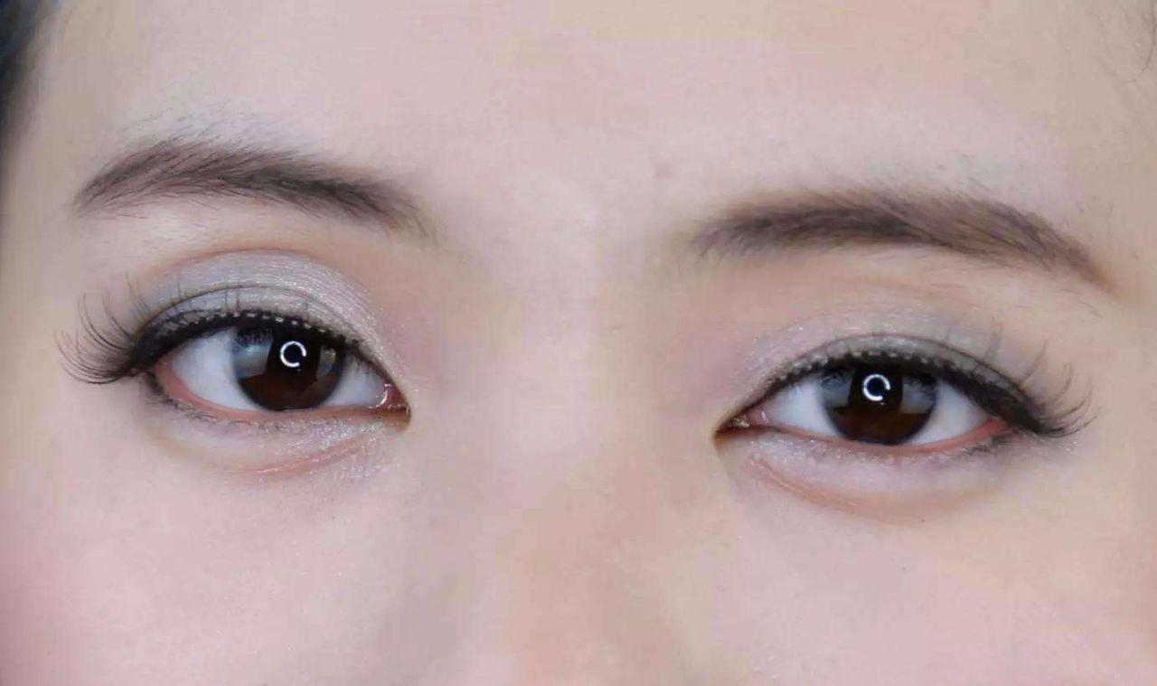 白眼球结膜水肿怎么回事 结膜水肿怎么办呢_养生频道-快速问医生