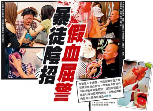 穿帮了!香港搞事者用假血浆涂脸企图抹黑警察
