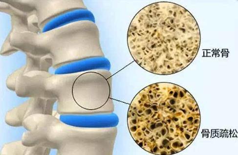 骨密度检查正常值是多少 骨密度和骨质疏松有何关系?