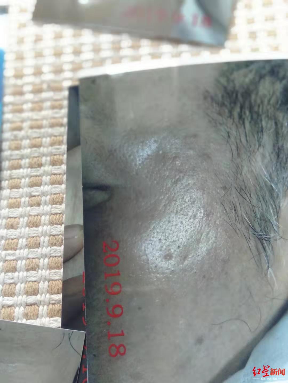 63岁老人被误当嫖客遭查控警方一次性补助9万元