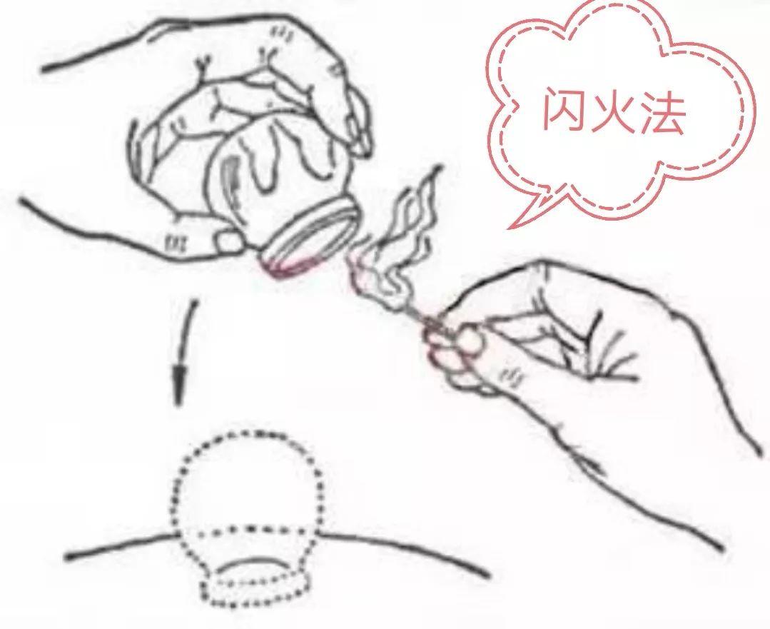中医拔火罐法的原理_拔火罐图片