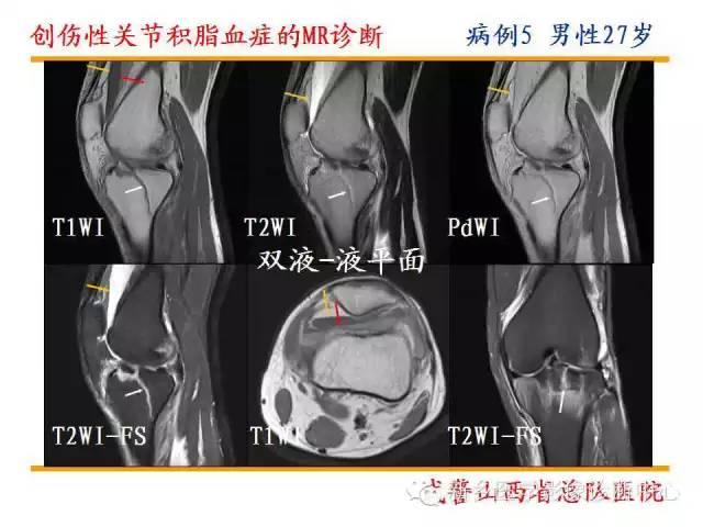 膝关节髌上囊积液_膝关节外伤后看到髌上囊有液性信号?一定别着急诊断积液_平台