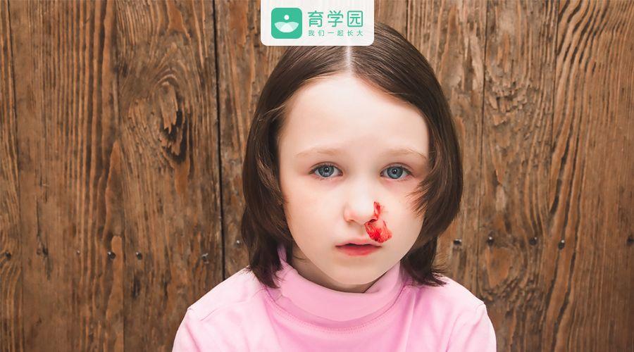 孩子流鼻血,你的做法正确吗?快来测一测吧~
