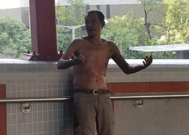 香港警队证实:今天有暴徒泼易燃液体放火烧市民