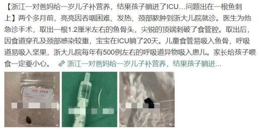 给孩子补营养补进ICU:1.7cm鱼刺卡住1岁男孩喉咙