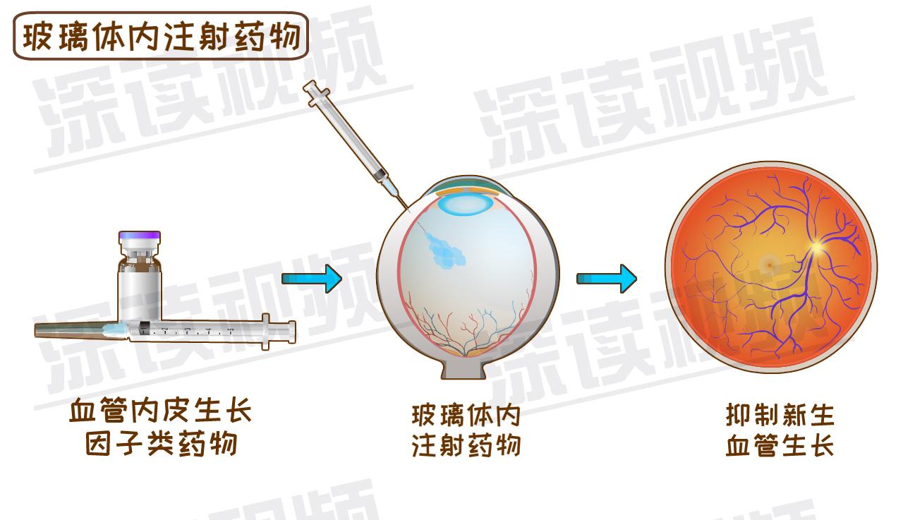 玻璃体切割手术的原理_175眼科玻璃体切割术的健康宣教