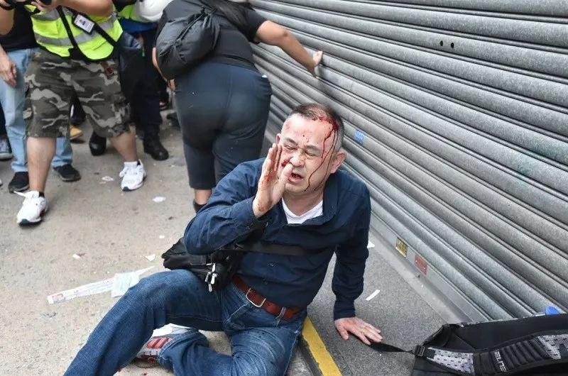 日本游客香港街头遭袭