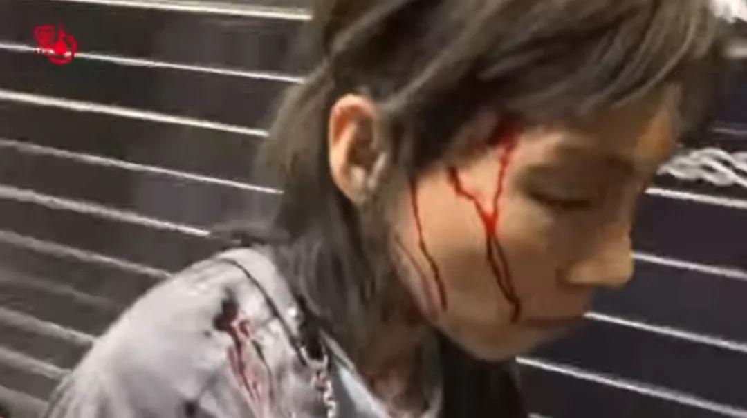香港一女子遭暴徒用灭火器喷射头部,同日有日本人在港被殴打流血