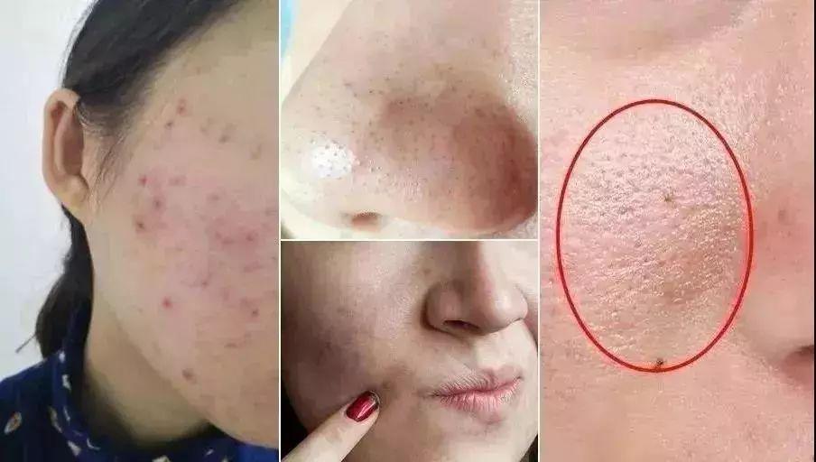 脸油发痒?这样洗脸,5秒搓走螨虫,一块还能洗全身,多年痘痘都没了!_皮肤