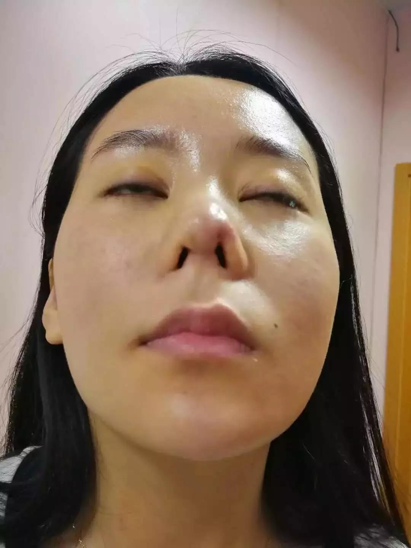 鼻综合真实案例前后恢复对比图 你和仙女只差一个鼻子-三元整形网