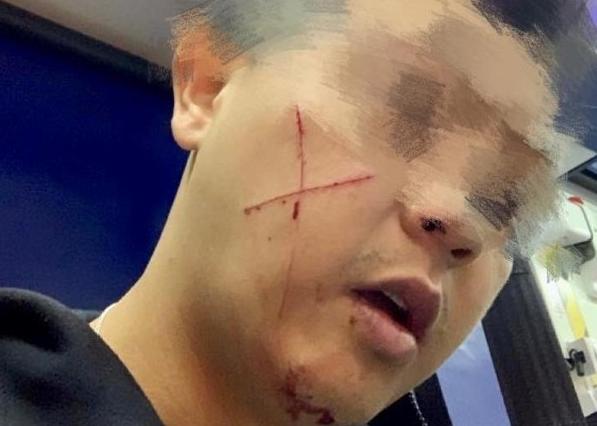 """愤怒!香港又有休班警员遇袭脸上被刀划""""十字""""伤口"""