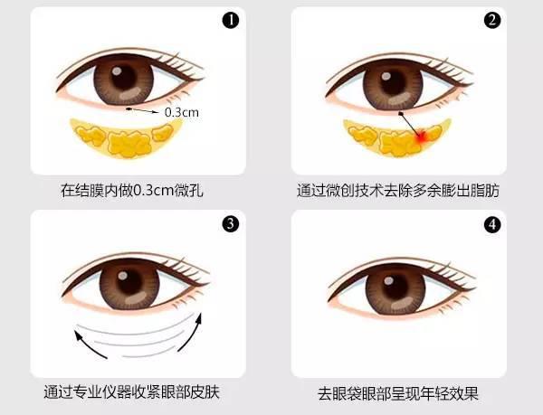 修复眼袋最佳方法 眼部眼袋失败修复常见问题有哪些?