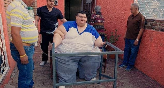 最胖的人减660斤 体重最高峰时1180斤太惊人