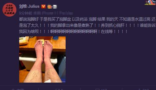 """原创             刘维半夜药浴泡脚,结果泡后又红又痒啥情况?网友调侃说他腿上""""毛裤""""太厚了"""