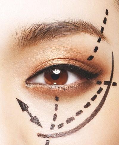 埋线双眼皮多久恢复 埋线双眼皮能保持多久?