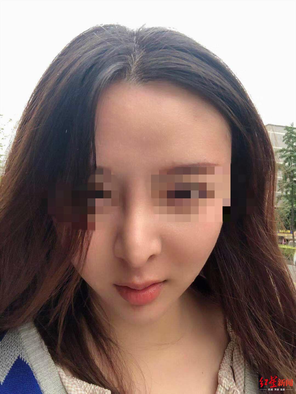 年轻姑娘整形整歪了鼻子要求退费医美机构:有无问题需鉴定