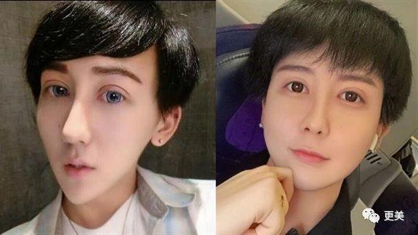 顶级富二代换头4次整成塑胶娃娃,比刘梓晨都吓人,名人爸的态度竟是?