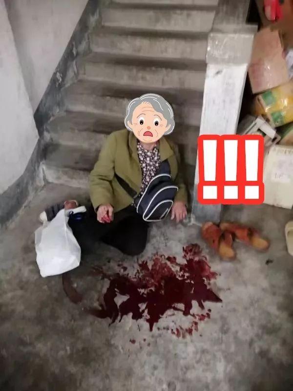 感动!老人摔倒满地是血,张槎派出所警察叔叔温情送医