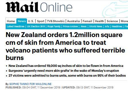 新西兰火山喷发致数十人烧伤,该国订购120万平方厘米皮肤用于移植_邮报