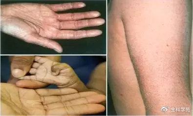 多 形 紅斑 重症 型