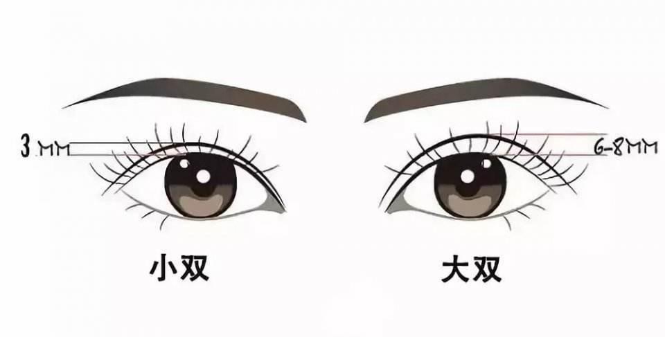 [廣州金沙洲醫院醫美科蘇朝陽:雙眼皮寬度是否能隨意選擇呢?]