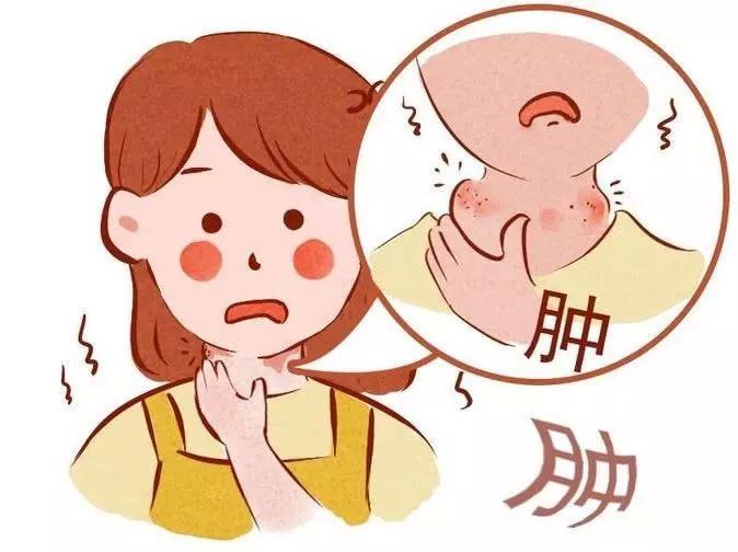 慢性咽炎应该注意什么?