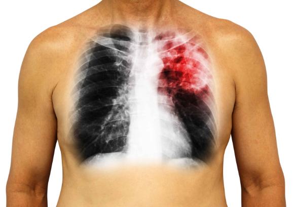 肺癌晚期图片,为何发现时已经是晚期