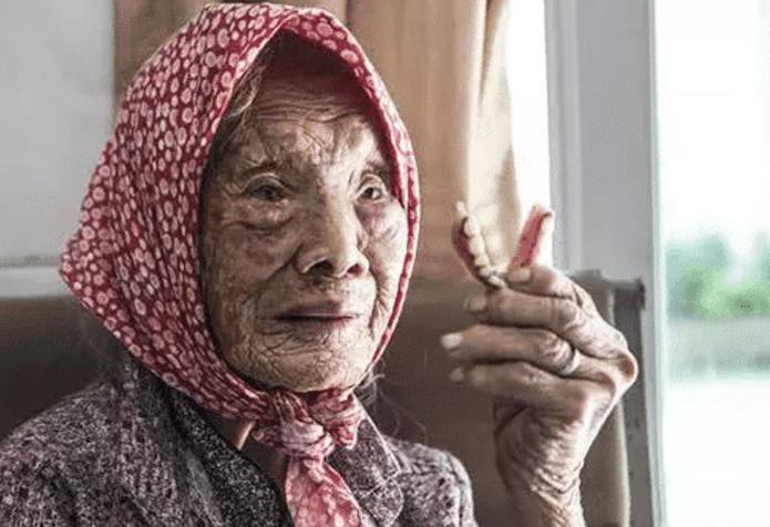 """""""怀孕最长时间""""的人,91岁老太""""怀孕60年""""不知情,等发现时已钙化"""