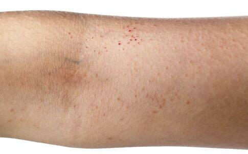 湿疹是什么原理_湿疹是什么样子图片
