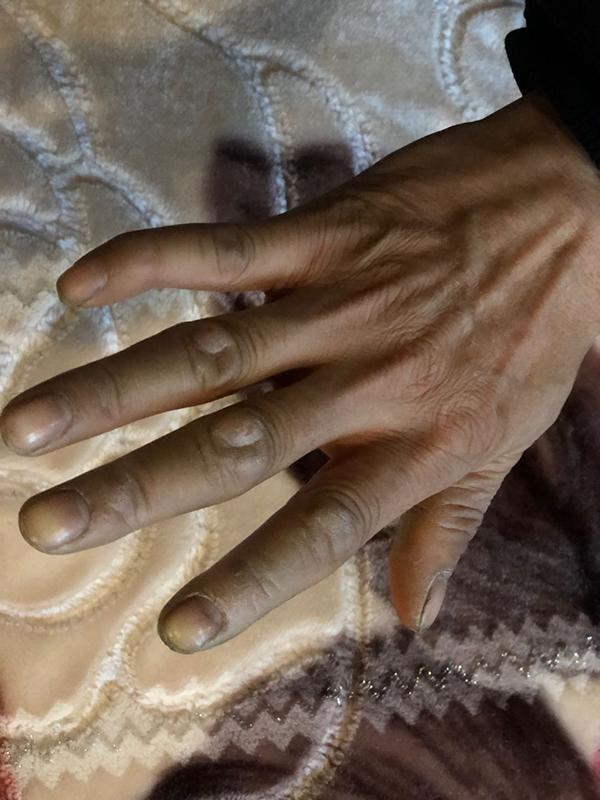 重庆被砸高三女生父母:编藤椅供女儿读书 悲痛但选择原谅