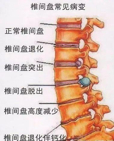 """您""""突出""""吗?腰椎间盘突出症偏爱7种人,请务必注意这4种姿势"""