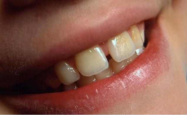 牙缝里的石头又臭又黄?教你3个妙招,清除牙结石,还你一口好牙