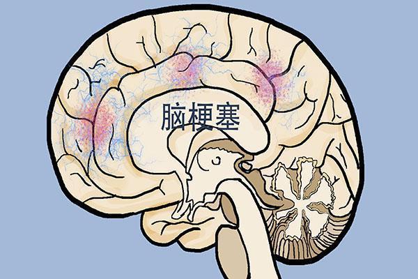原创发生脑梗死后,一事不犹豫,几点能注意,或可减少意外发生