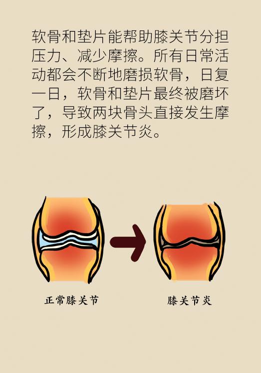 走不动路就晚了!保护膝关节,关键做好这6点