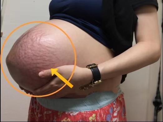 孕期孕妈这几种变化,看似难受,其实是胎儿在报喜:我在茁壮成长
