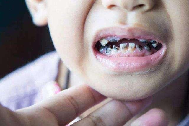 """3岁娃不吃糖果却一口小黑牙,医生说出""""元凶"""",怒斥家长无知"""